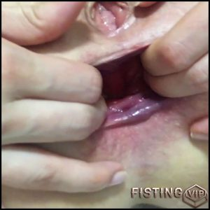 Prolapse close up – Full HD-1080p, Solo, anal and vaginal fisting (Release December 25, 2016)