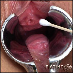 Vanesa Gyno Exam – HD-720p, fisting tube, anal fisting, Prolapse(Rosebutt) (Release April 14, 2017)