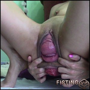 Anal Huge dildo prolapse with