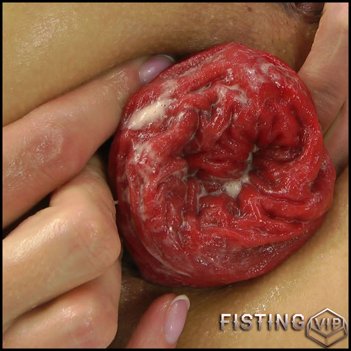 Hotkinkyjo - Dig with fist in the ass - Full HD-1080p, anal prolapse, extreme fisting, hardcore fisting (Release June 23, 2017)1