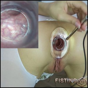 Endoscope test. Cervix, rectum hot views – Mylene – Full HD-1080p, solo fisting, Speculum (Release August 23, 2017)