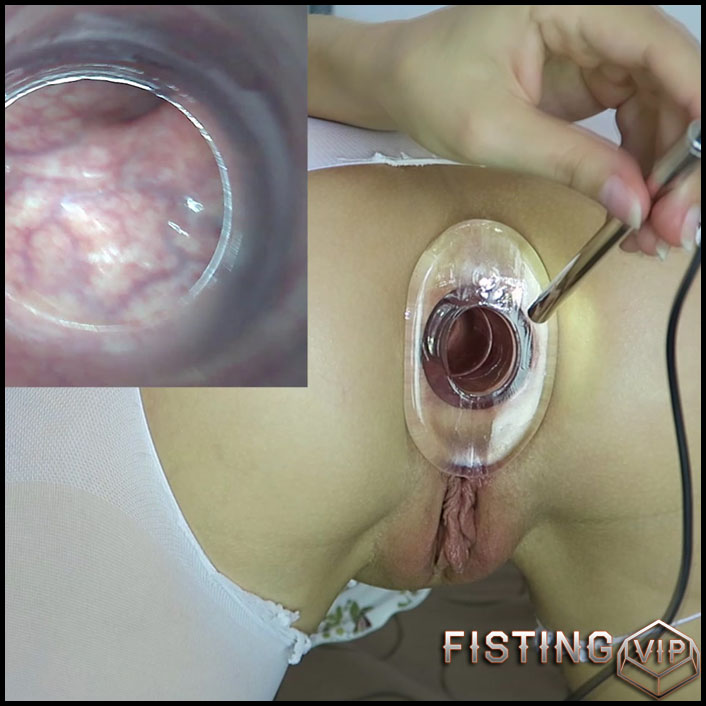 Endoscope test. Cervix, rectum hot views - Mylene - Full HD-1080p, solo fisting (Release August 19, 2017)1