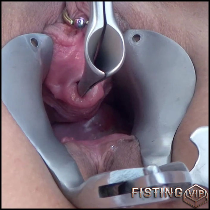 Rare porn double speculum – pussy and urethra - Full HD-1080p, speculum pussy, urethra fuck (Release April 3, 2018)1
