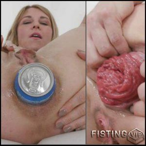 Tin Penetration Fully In Epic Prolapse Anal – Sindy Rose – Deep Fisting, Dildo Anal