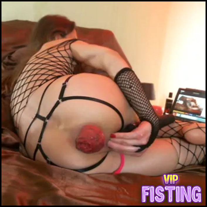 Rare Anal Prolapse Video Longer Than 1 Hour With - Maria Hella